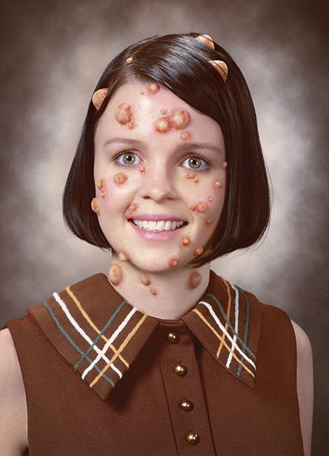 black holes on face - photo #46